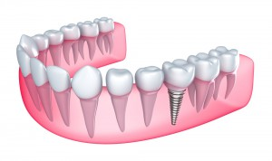 Dental Implants Marlborough MA