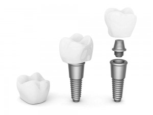 Dental Implants in Marlborough and Southborough