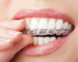 Marlborough Invisalign