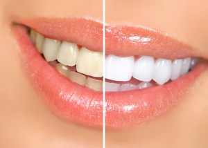 Teeth Whitening in Marlborough and Southborough