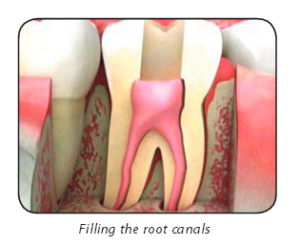 Root Canal Therapy Southborough